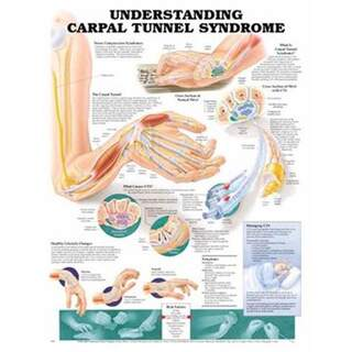Plane carpal tunnel syndrome English