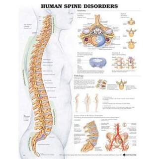 Disease of the spine Laminated poster English (Human spine disorders)