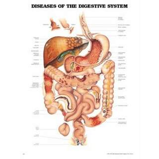 Diseases of the digestive system laminated poster English