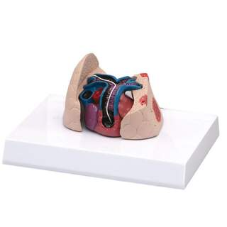 Cat heart and lung model with heartworm