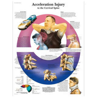 Anatomy poster - WHIPLASH - neck injuries