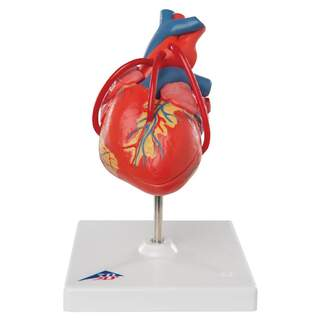 Heart model that shows the result after a bypass operation
