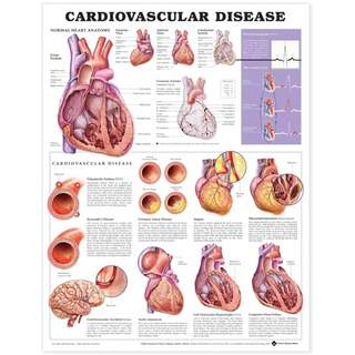 Laminated poster on cardiovascular disease in English