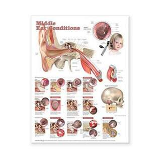 Diseases in middle ear laminated poster English