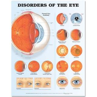 Eye Disorders Laminated Poster (Disorders of the Eye)