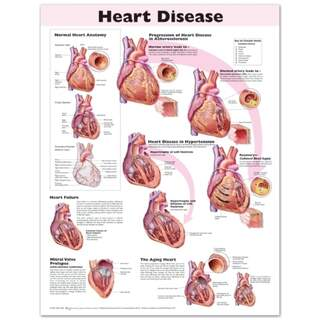 Laminated poster on heart disease in English