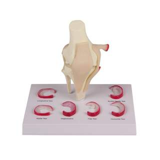 Knee model with menu lessons