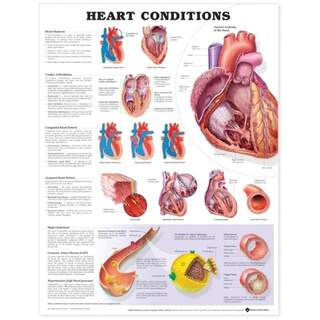 Heart disease laminated poster