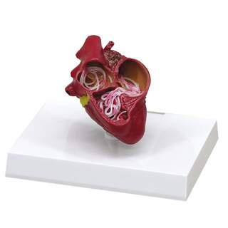 Dog Heart with Heartworm