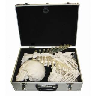 Skeletal bone collection