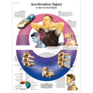 Anatomy poster - WHIPLASH - neck injuries