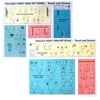 Trigger points Plate | Pain Patterns Set Travell & Simons