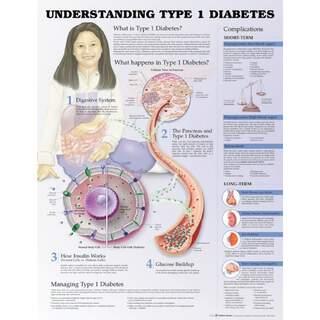 Type 1 diabetes - Poster / Plans