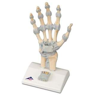 Hand Skeleton with Ligaments and carpal tunnel syndrome